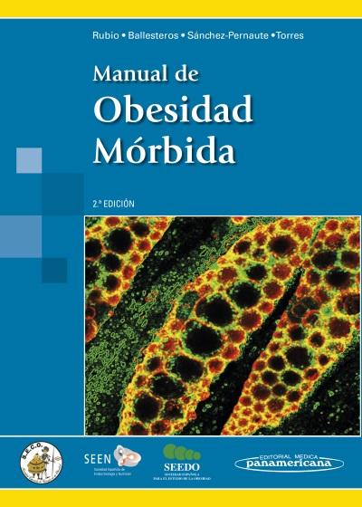 manual de obesidad morbida-miguel angel rubio herrera-9788498358476