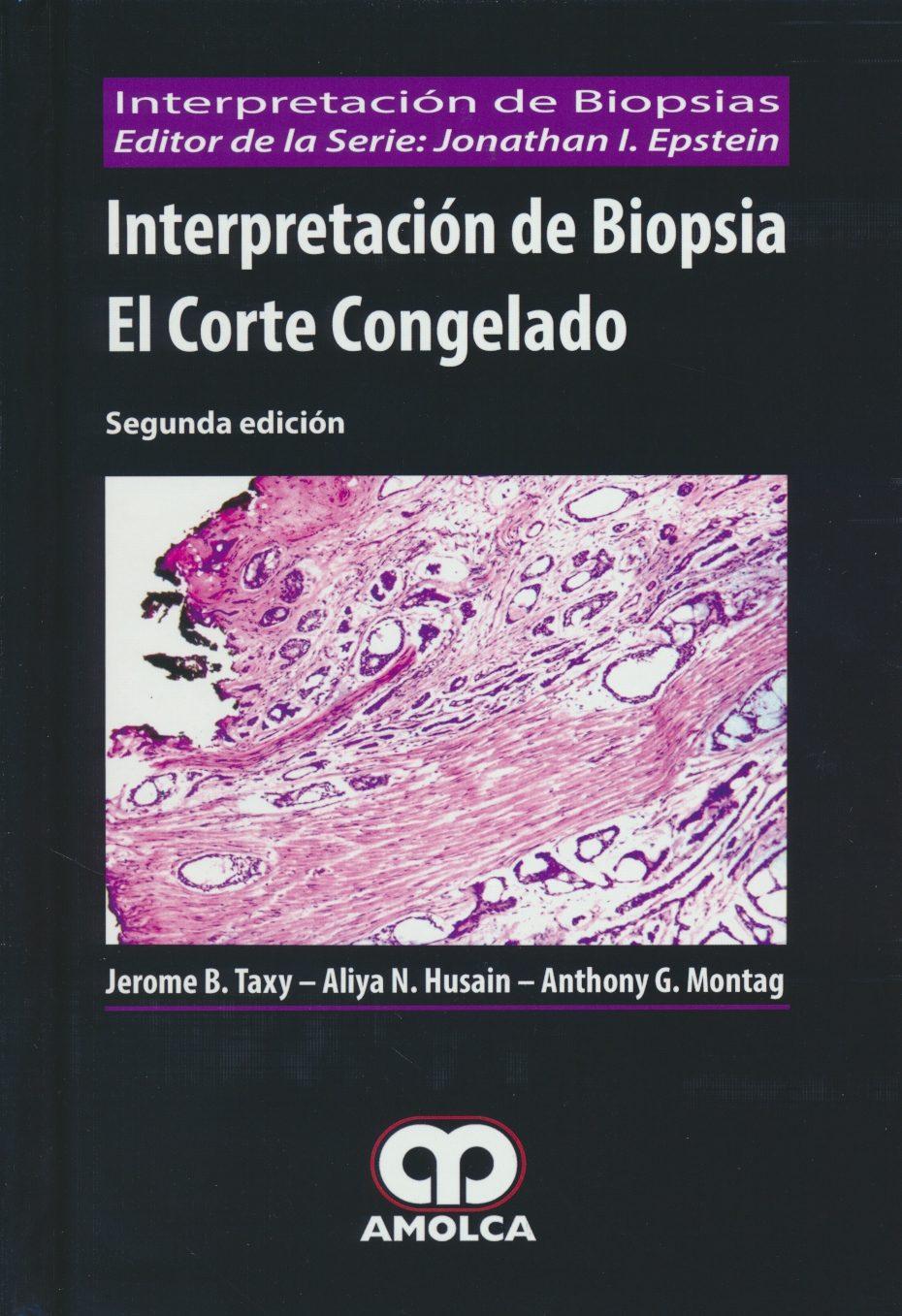 INTERPRETACION DE BIOPSIA. EL CORTE CONGELADO (2ª ED.) | JEROME B ...