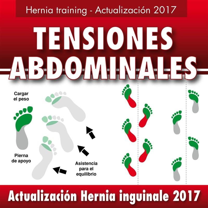HERNIA INGUINAL - ACTUALIZACIÓN 2017 EBOOK | GUSTAVO GUGLIELMOTTI ...