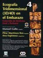 ecografia tridimensional (3d/4d) en el embarazo + cd (coleccion d e medicina fetal y perinatal vol. 4)-manuel gallo-9789588760346