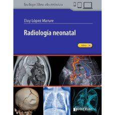 Descargar libros de Scribd RADIOLOGÍA NEONATAL de E. LÓPEZ-MARURE 9789874922106