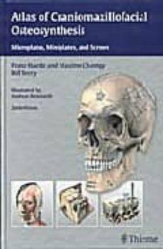 Gratis para descargar libro ATLAS OF CRANIOMAXILLOFACIAL OSTEOSYNTHESIS: MICROPLATES, MINIPLA TES AND SCREWS (2ND ED.) 9783131164926 de F. HEARLE (Literatura española)