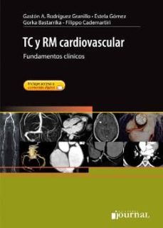 Descargar libros gratis en pdf ipad TC Y RM CARDIOVASCULAR: FUNDAMENTOS CLINICOS (ACCESO ONLINE)