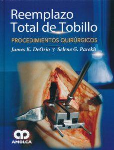 Descargar Ebook para teléfonos móviles gratis REEMPLAZO TOTAL DE TOBILLO: PROCEDIMIENTOS QUIRURGICOS CHM PDF in Spanish