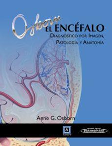 Descargar libros electrónicos gratis epub EL ENCEFALO. DIAGNOSTICO POR IMAGEN, PATOLOGIA Y ANATOMIA 9788498358056