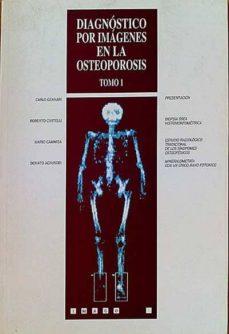 DIAGNÓSTICO POR IMÁGENES EN LA OSTEOPOROSIS. TOMO 1 - CARLO Y OTROS:, GENNARI | Adahalicante.org
