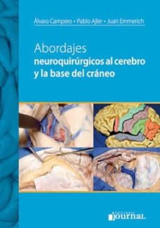 Ebooks descargar kostenlos englisch ABORDAJES NEUROQUIRURGICOS AL CEREBRO Y A LA BASE DEL CRANEO (Literatura española) 9789871259786