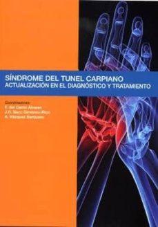 Descargar gratis google books mac SINDROME DEL TUNEL CARPIANO: ACTUALIZACION EN EL DIAGNOSTICO Y TR ATAMIENTO PDF iBook